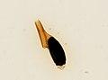 Pthirus pubis (YPM IZ 093660).jpeg