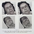 Pustular eruption of smallpox on face Wellcome L0032958.jpg