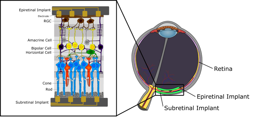 visual sensory systems The visual system includes the eyes, the connecting pathways through to the visual cortex and other parts of the brain the illustration shows the mammalian system.