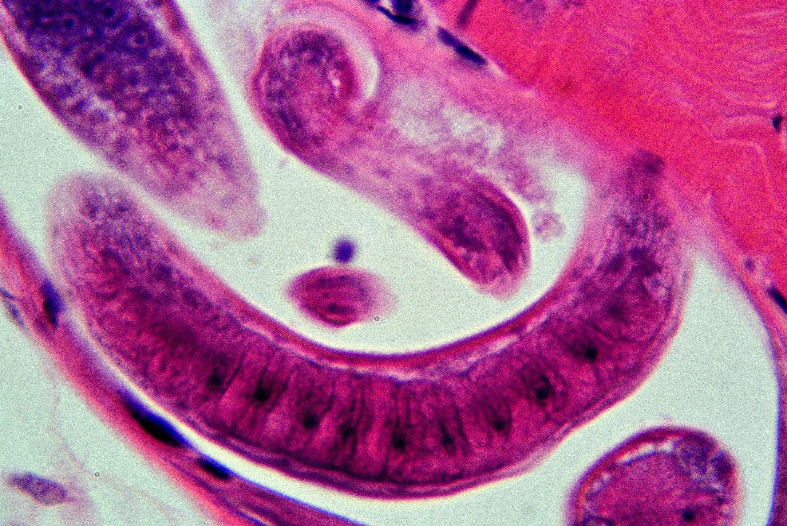 hogyan viselkedjünk emberi parazitákkal az aszcariasis helminthiasis