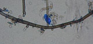 <i>Aureobasidium pullulans</i> Species of fungus