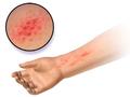 Blausen 0014 AllergicDermatitis.png