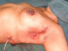 Klemmender Schmerz im vaginalen Bereich