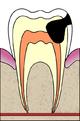 שן שזקוקה לטיפול שורש  ויקיפדיה האינצקלופדיה החופשית