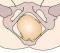 Cephalic presentation - left occipito-posterior.png