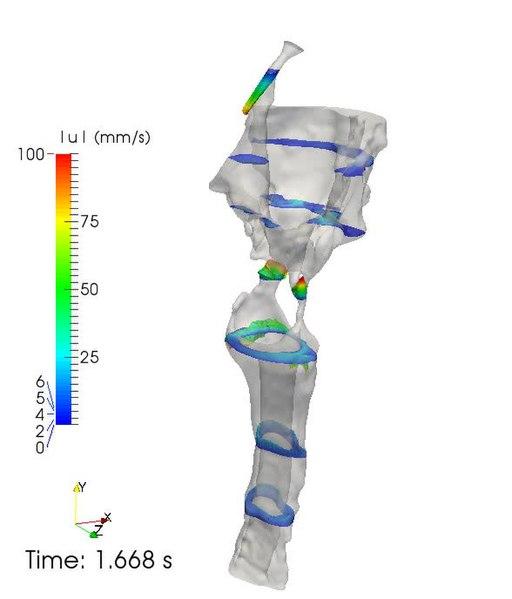 Posterior cranial fossa boundaries in dating