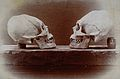 Cranial deformation; two skulls of Flathead Indians Wellcome V0031172.jpg