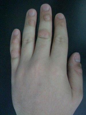 Dermatillomania fingers.JPG