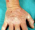 Dermatitis Herpetiforme 2.jpg