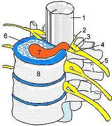 Hernia Nuclei Pulposi Wikipedia