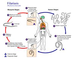 Filariasis Wikipedia Bahasa Indonesia Ensiklopedia Bebas