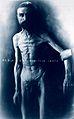 Friern Hospital, London; a naked man standing, very emaciate Wellcome L0018492.jpg