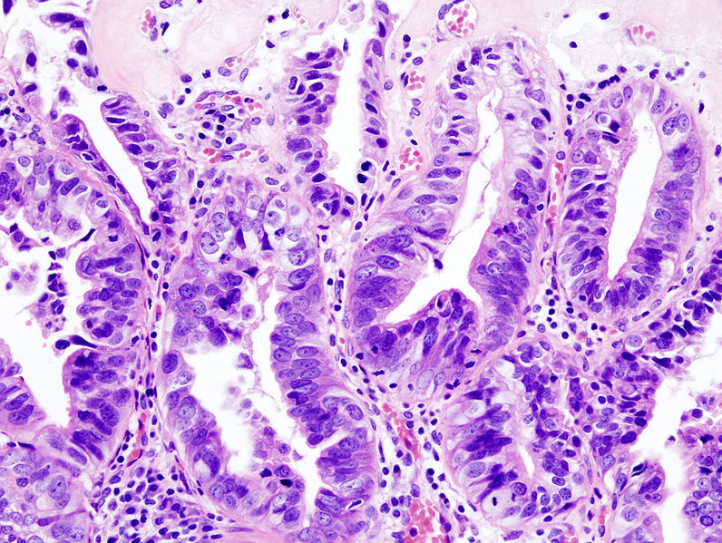 Datei:Gallbladder adenocarcinoma (2) histopathology.jpg