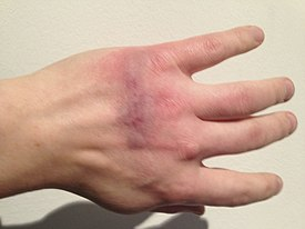 Hand of a player after playing Painstation.jpg