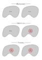 Hausdorff regular normal space diagram.png