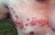 Shingles rash on the chest