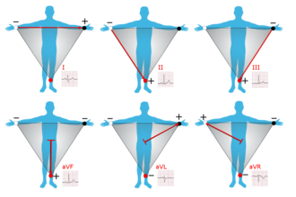 Einthoven's triangle - Graphical representation of Einthoven's triangle
