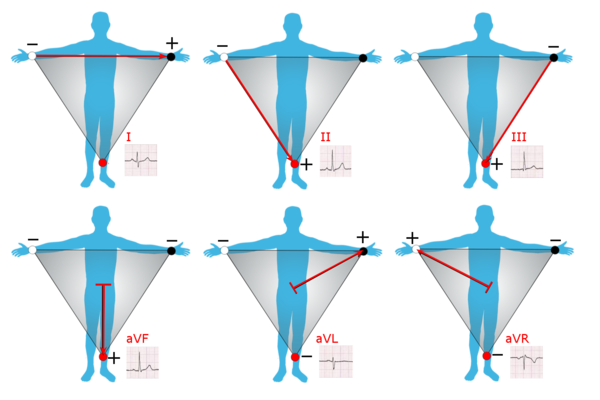 limb leads[edit]