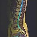 Lumbosacral MRI case 13 06.jpg