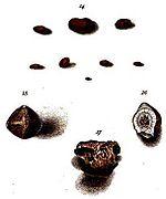 William prout wikipedia la enciclopedia libre diferentes especies de clculos renales dibujados por william prout urtaz Image collections