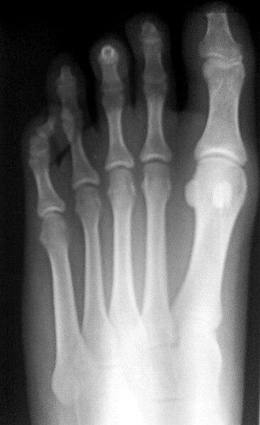 Human Toes