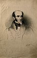 Robert Liston. Lithograph by M. Gauci, 1836, after E. U. Edd Wellcome V0003622.jpg