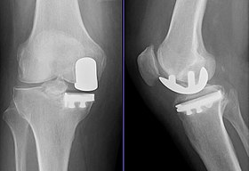 Partial Knee Replacement >> Unicompartmental Knee Arthroplasty Wikipedia