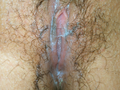 Vulva with vaginal fluid (ejaculation - squirting).png