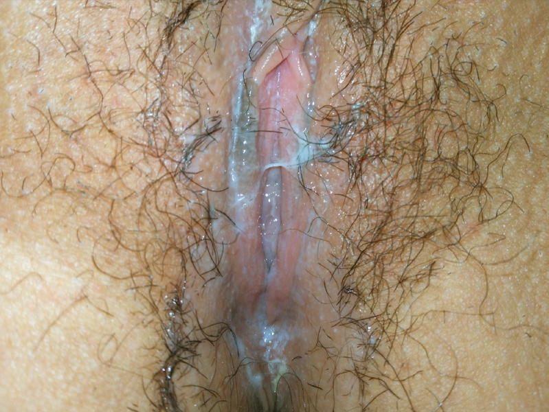 File:Vulva with vaginal fluid (ejaculation - squirting).png