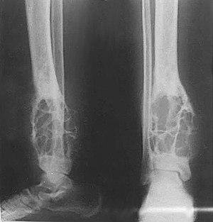 X-ray of adamantinoma of the tibia.jpg