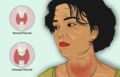 A woman suffering from Goiter.png