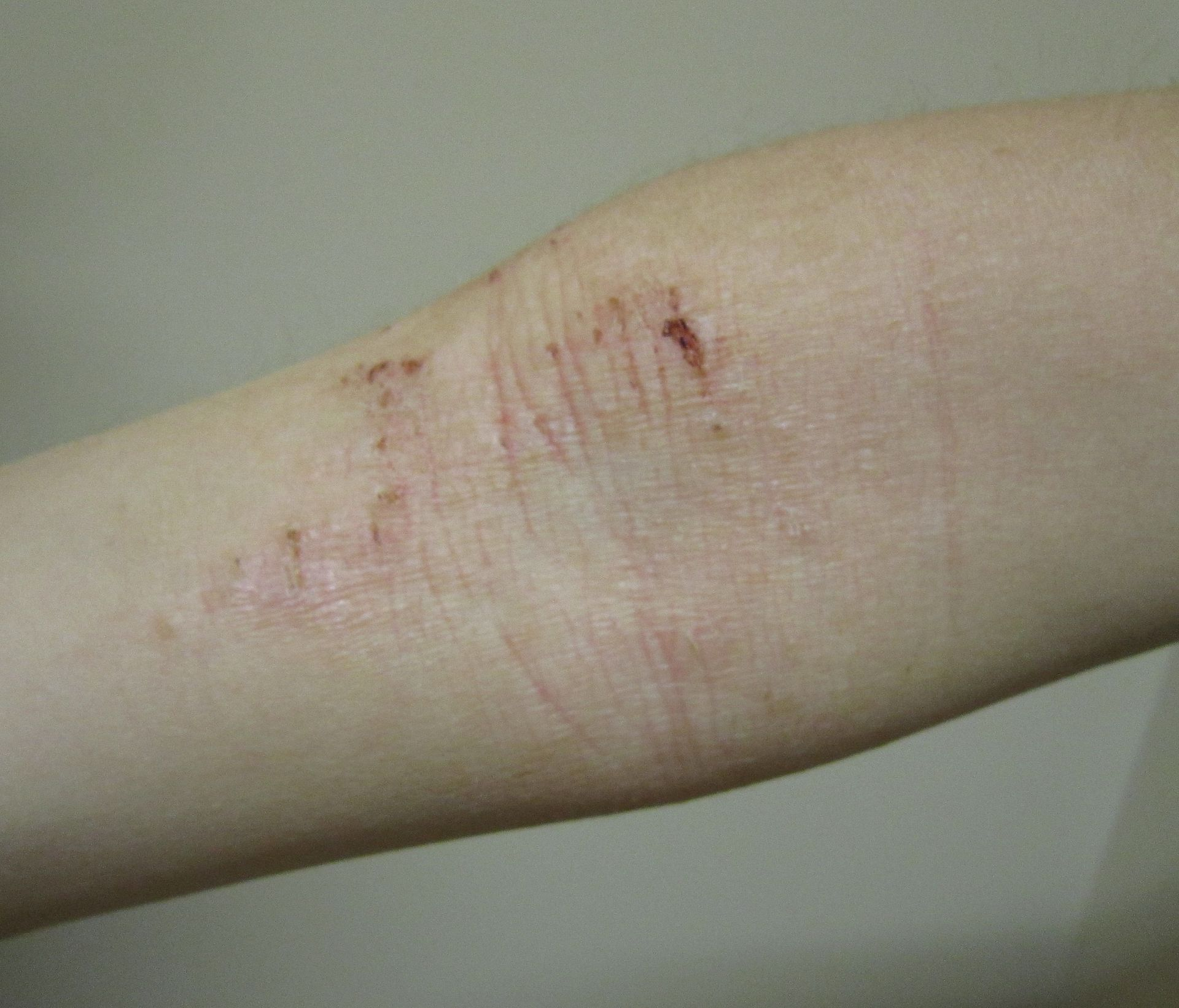 atopic dermatitis develop in adults