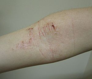 atopic dermatitis - wikipedia, Human Body