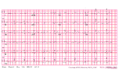 Brugada syndrome type1 example3 (CardioNetworks ECGpedia).png