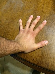 Carpal Tunnel Syndrome Wikipedia