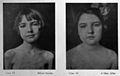 Cases before and after insulin treatment Wellcome L0031615.jpg