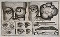 Eye diseases and surgical instruments. Line engraving by F. Wellcome V0015915.jpg