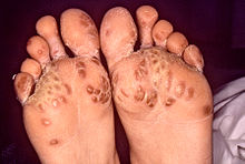 Diagnosis revealed that the rash on the bottom of this individual's feet, known as keratoderma blennorrhagica, was due to Reiter's syndrome'-CDC/ Dr. M. F. Rein.