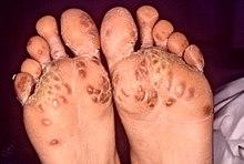 Reactive arthritis - Wikipedia, the free encyclopedia
