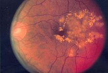 Esame del fundus oculi in un paziente affetto da retinopatia diabetica