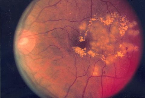 Fundus photo showing focal laser surgery for diabetic retinopathy EDA10