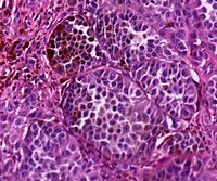 Histopathology of nodular melanoma, high magnification.jpg