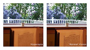 hyperopia myopia senilis