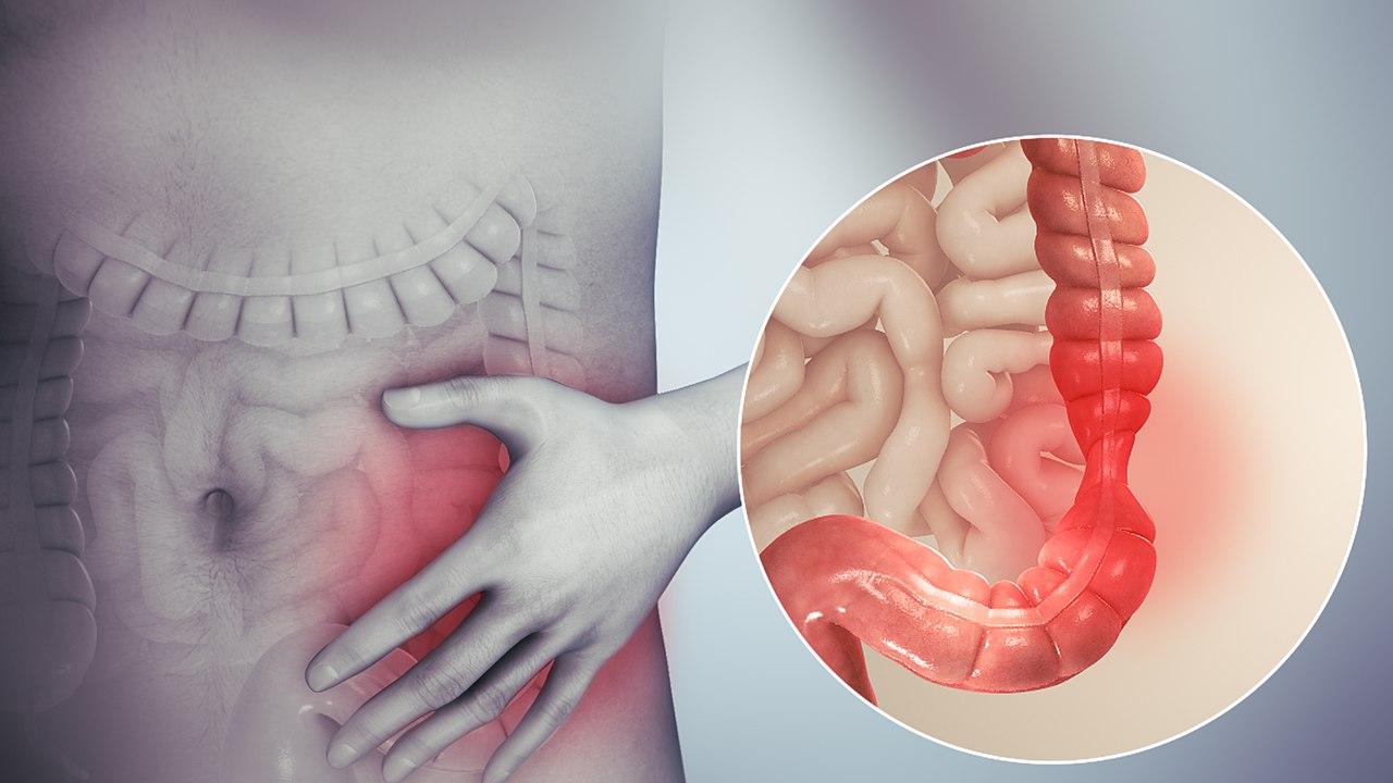 colon irritabile symtom