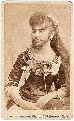 kraftig hårväxt hos kvinnor