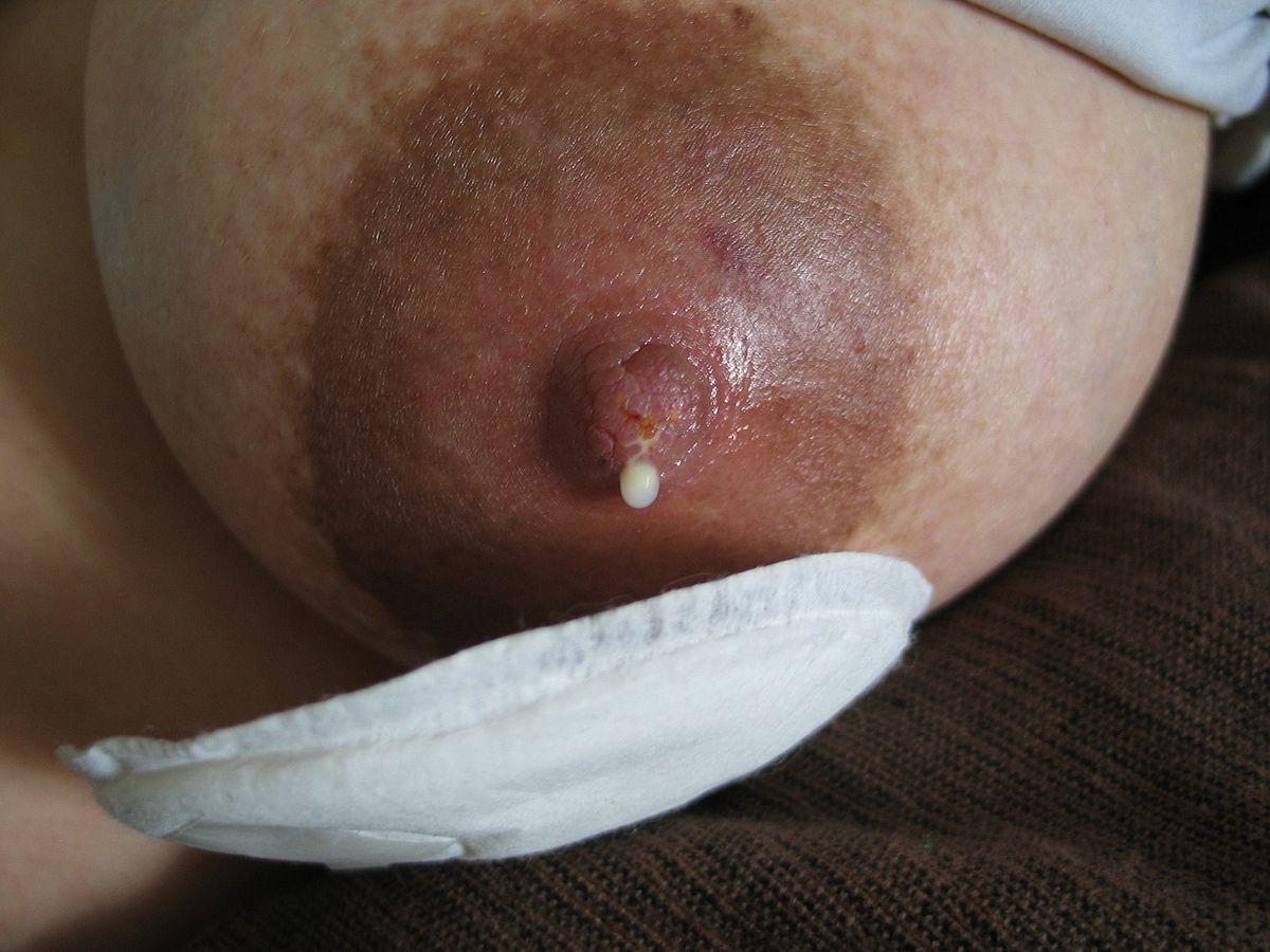 После секса болят соски верстка блога
