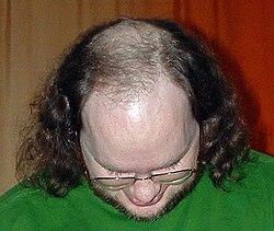 dht kvinnligt håravfall