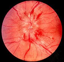 Příklad edému papily zrakového nervu při městnání, plaménkovité hemoragie v okolí