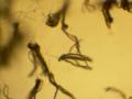 Penicillium conidiophores 40X.png