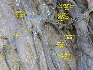 Superficial epigastric vein - Image: Slide 2por